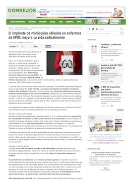 implante_valvulas_epoc_dr.flandes